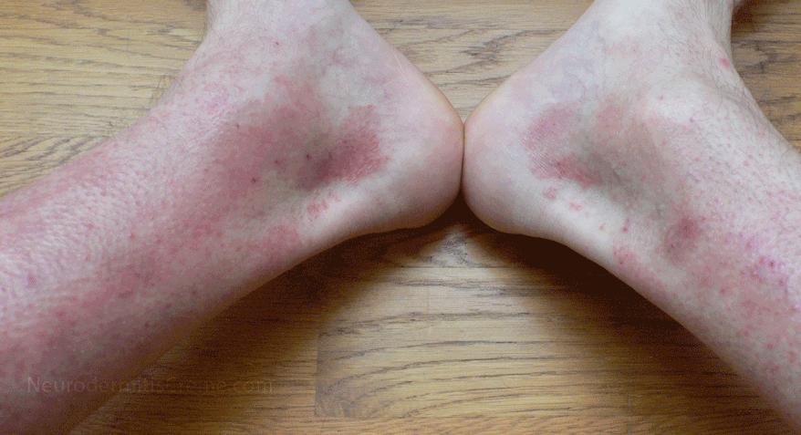 Neurodermitis an Bein-Unterschenkeln mit typischen Neurodermitis-Symptomen: Die Haut ist entzündet, stark geroetet, geschwollen mit Kratzspuren.