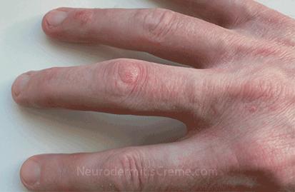 Neurodermitis an der Hand: trockene, schuppende, gerötete kleine Einrisse im Bereich der Fingerkuppen und der Fingerzwischenräume.